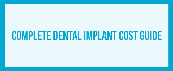 Dental implant cost | Consumer information & clear prices