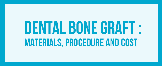 dental bone graft introduction image