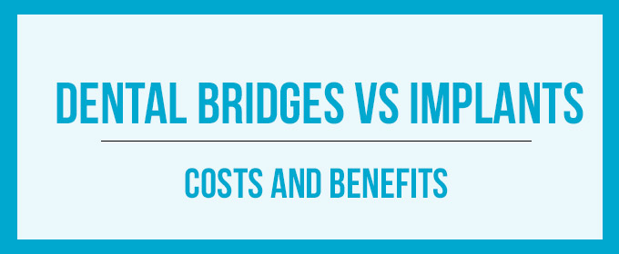 dental bridges vs implants