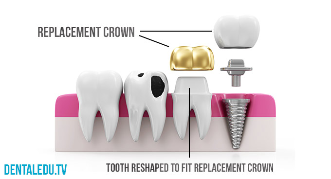 How Much Does An Alignment Cost >> Capped Teeth | Types of Crowns, Costs and Procedure