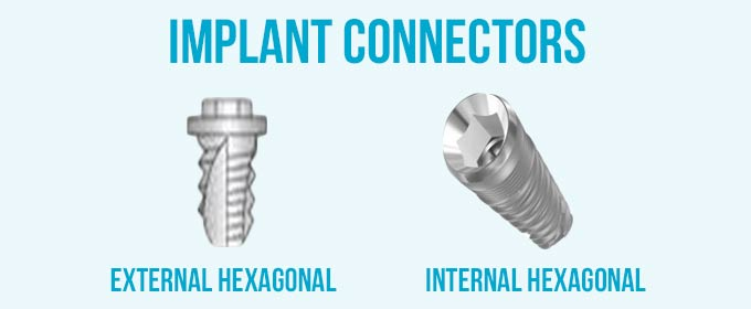 implant connectors
