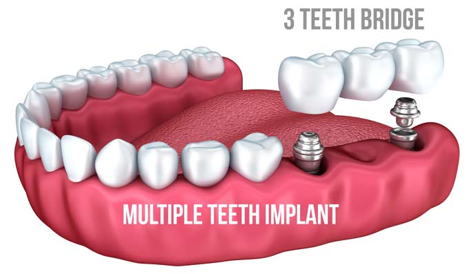multi teeth implant