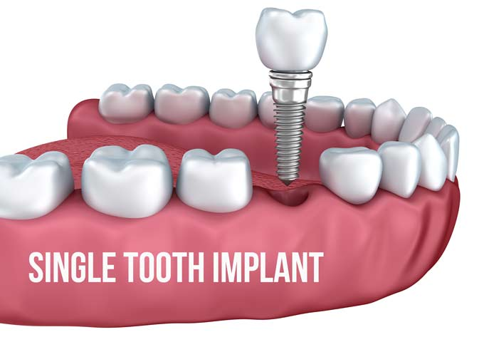 Where can you find information about dental implant pricing?