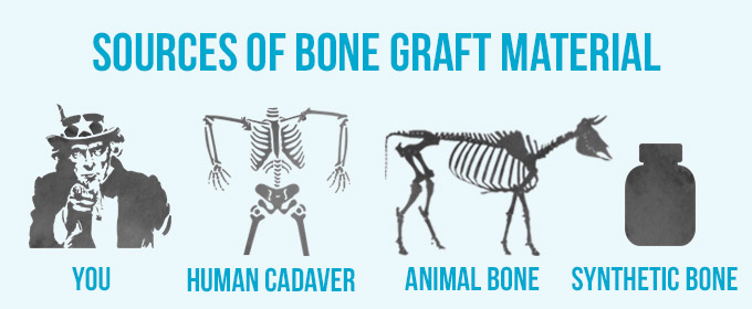 sources of bone graft material