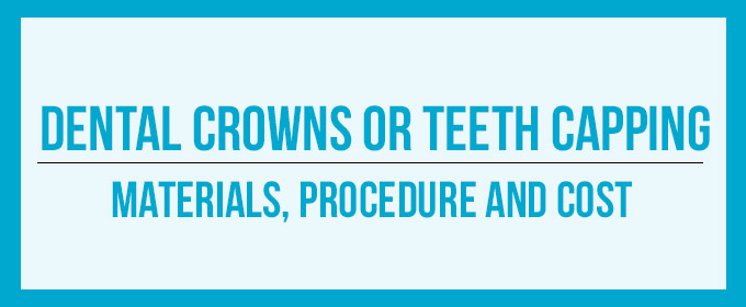 Capped Teeth | Types of Crowns, Costs and Procedure