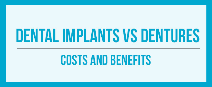 dentla implants versus dentures