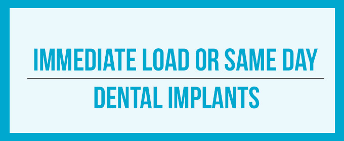 Immediate load or one day dental implants
